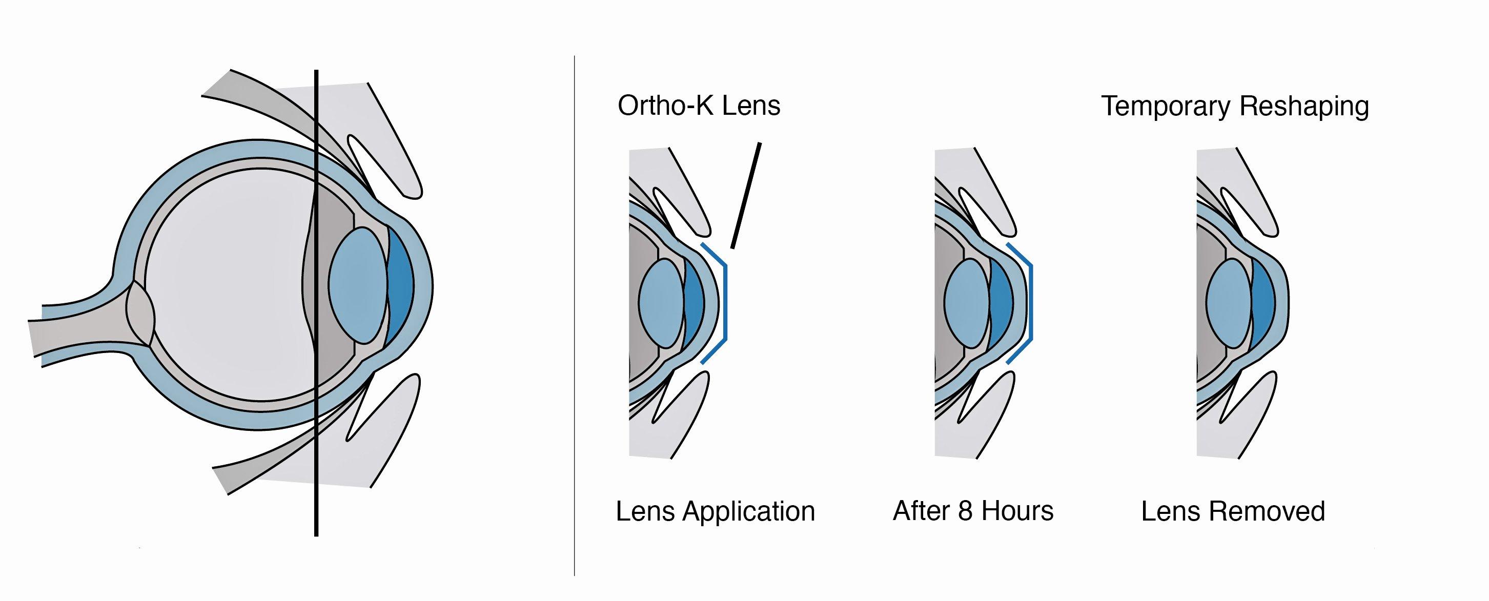 Ortho K Lens Reshaping