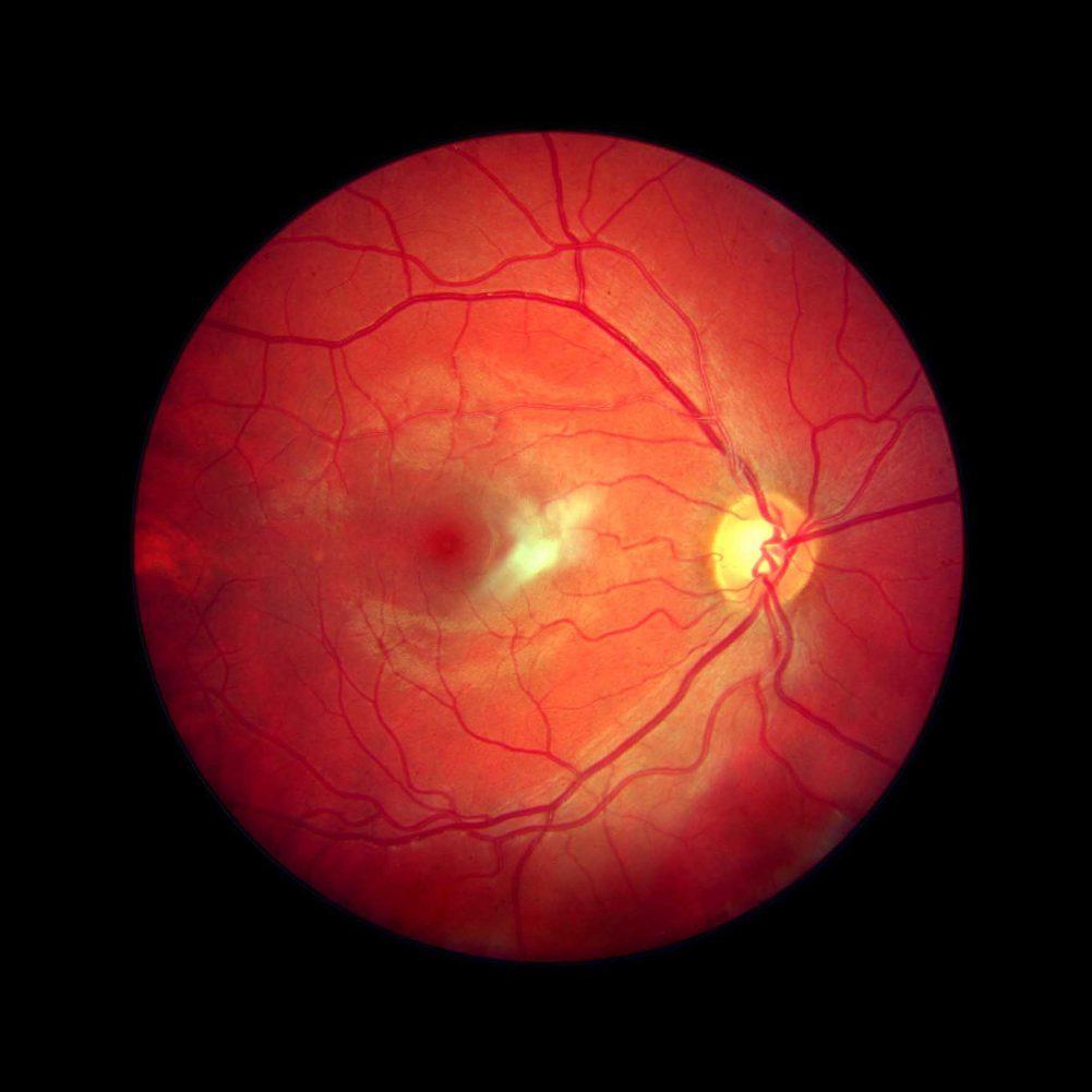 Special Diagnostic Vision Testing