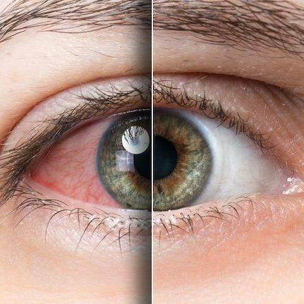 Dry Eyes, contact lens care