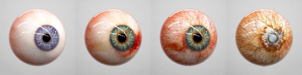 Red Eye Emergencies